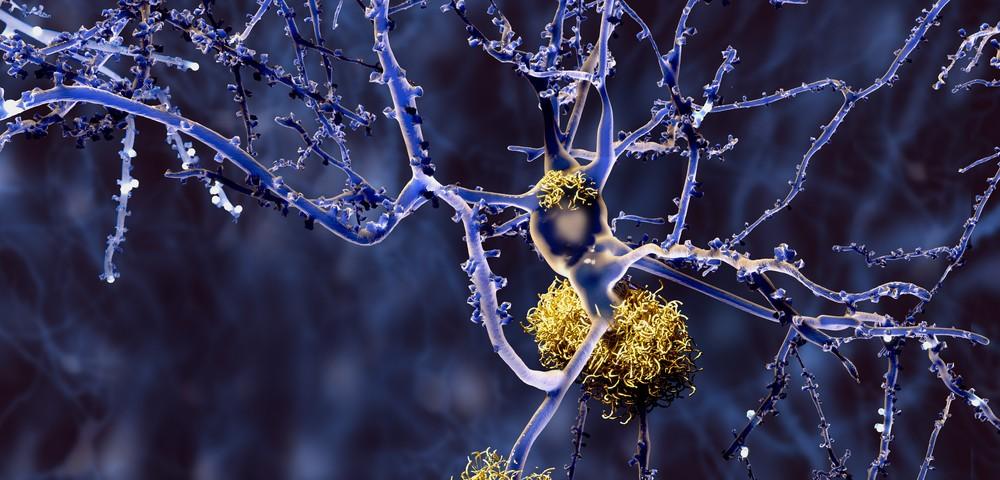 amyloid-neuron-1000x480